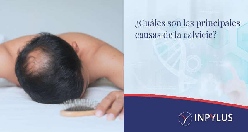 Inpylus - ¿Cuáles son las principales causas de la calvicie?