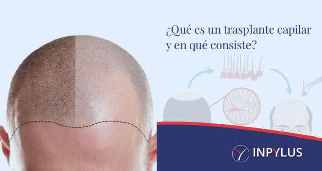 Inpylus - Que es un trasplante capilar y en que consiste