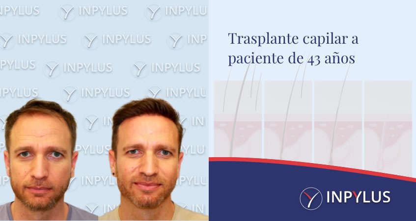 Inpylus - Trasplante capilar a paciente de 43 años