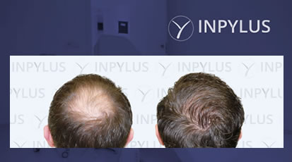 Inpylus - Video 3b