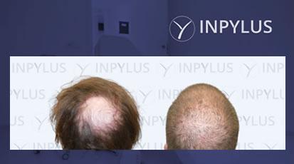 Inpylus - Video 5b