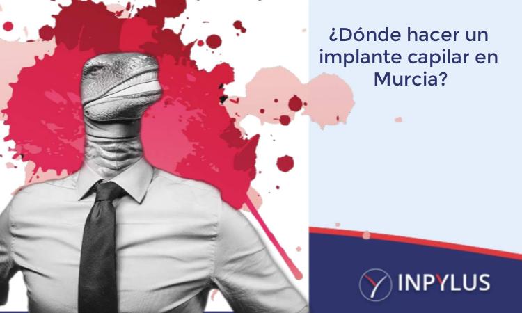 Inpylus - ¿Dónde hacer un implante capilar?