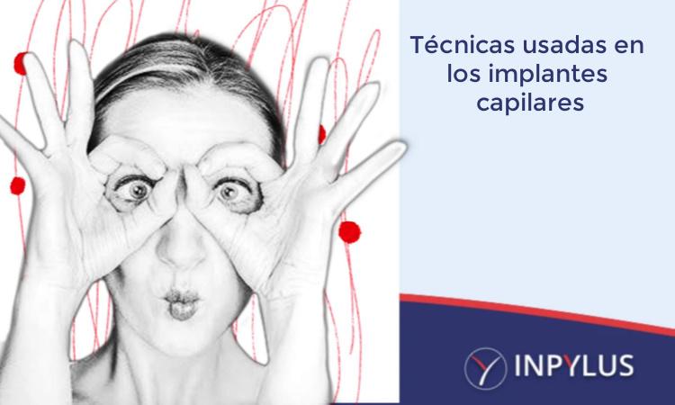 Inpylus - Técnicas usadas para hacer un implante capilar