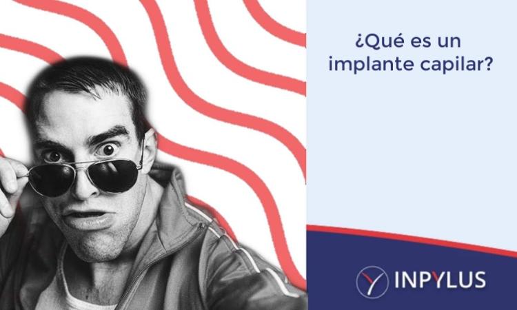 Inpylus - ¿Qué es un implante capilar?