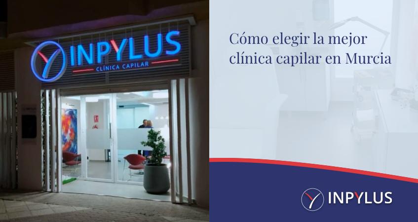 Cómo elegir la mejor clínica capilar en Murcia