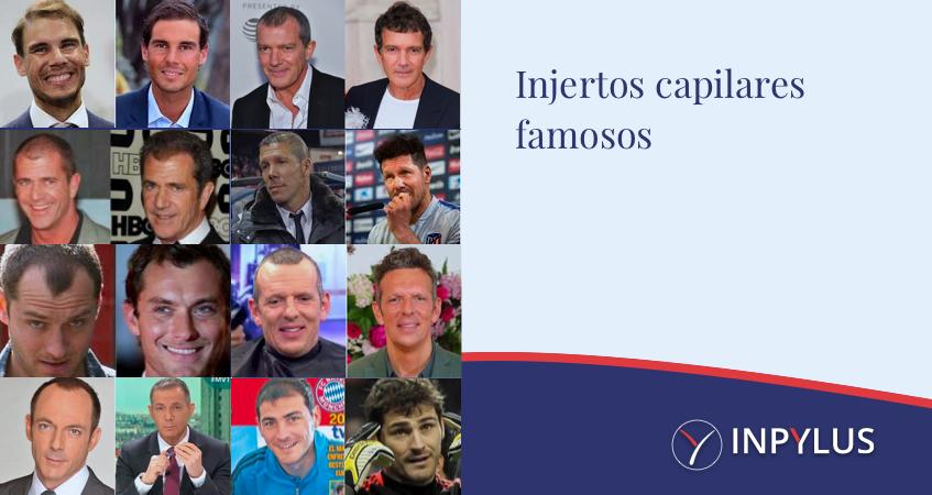 Inpylus - Los Injertos capilares de los famosos. Cuando dejas atrás la alopecia