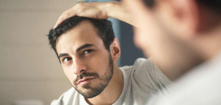 Alopecia difusa: ¿qué es y cómo solucionarla?