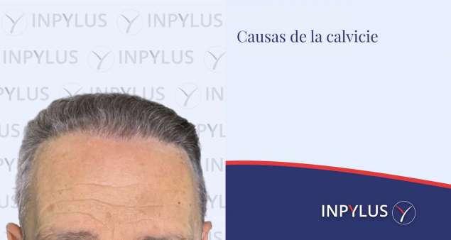 Inpylus - Causas de la calvicie, ¿por qué se produce?