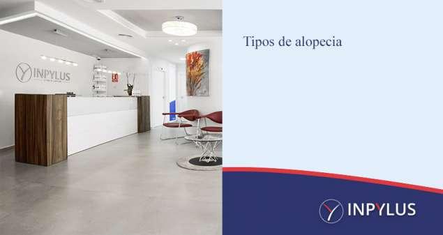 Inpylus - Tipos de alopecia y cómo solucionarla