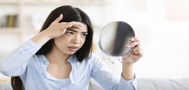 Síntomas de alopecia femenina y cómo reconocerlos