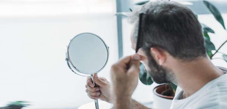 Alopecia cicatrizal: Todo lo que necesitas saber