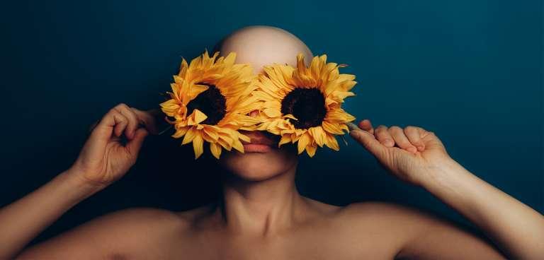 Alopecia universal: Definición, diagnóstico y tratamiento