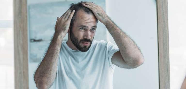 ¿Qué hacer si tengo entradas en el pelo?
