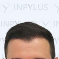 inpylus