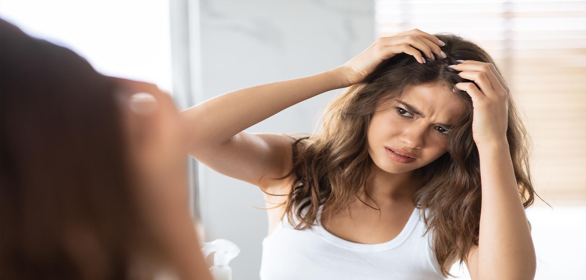 Dermatitis seborreica en el cuero cabelludo