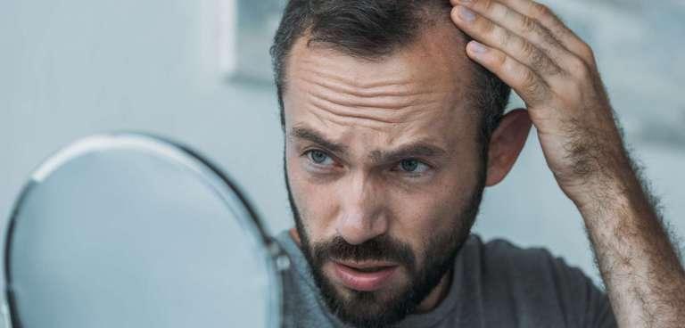 Tipos de alopecia: ¿cuál es el tuyo y a qué se debe?