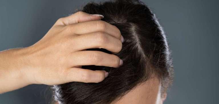 Picor en el cuero cabelludo. Causas y tratamientos