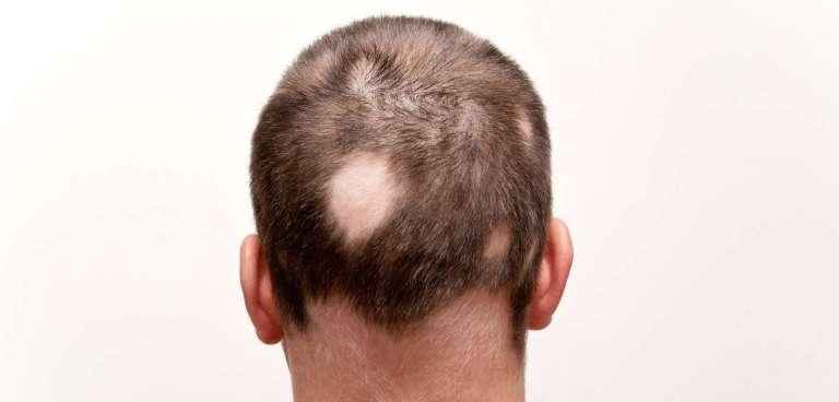 Alopecia areata: causas y posibles soluciones